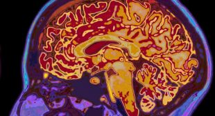 Covid linked to risk of mental illness and brain disorder, study suggests