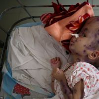 40 years since Agent Orange and babies still suffering the effects